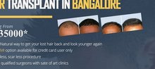 Cheapest Hair Transplant in Bangalore