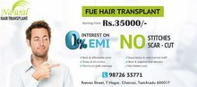 Hair transplant in chennai