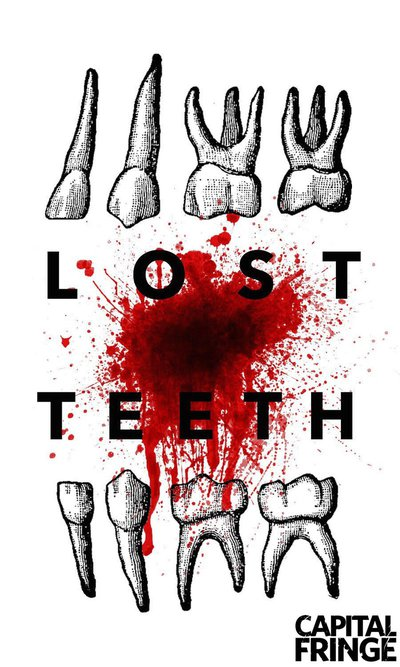 Blowout Theatre presents Lost Teeth at Capital Fringe